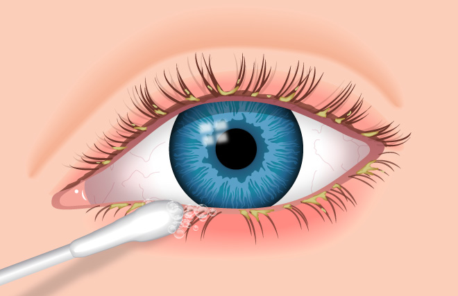 blepharitis-featured