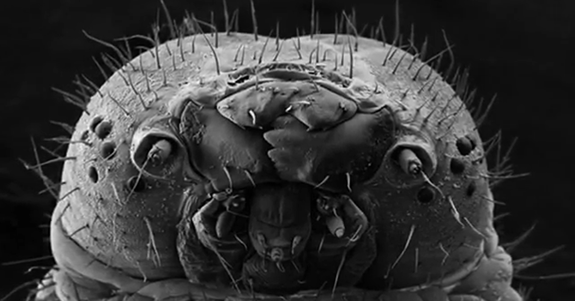 What Are Eyelash Mites Why It Lives In My Eyes Right Now